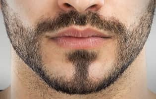 transplantation de barbe
