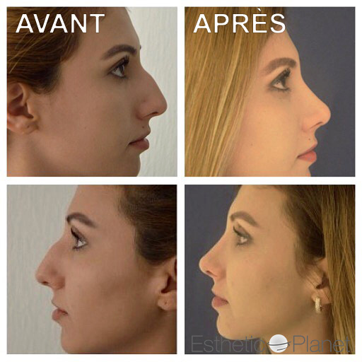 chirurgie du nez photos de nos interventions de rhinoplastie. Black Bedroom Furniture Sets. Home Design Ideas